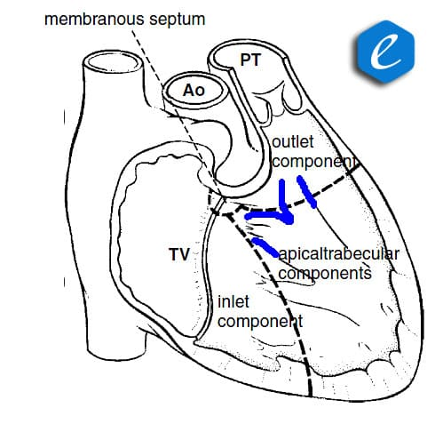 Normal anatomy of the interventricular septum